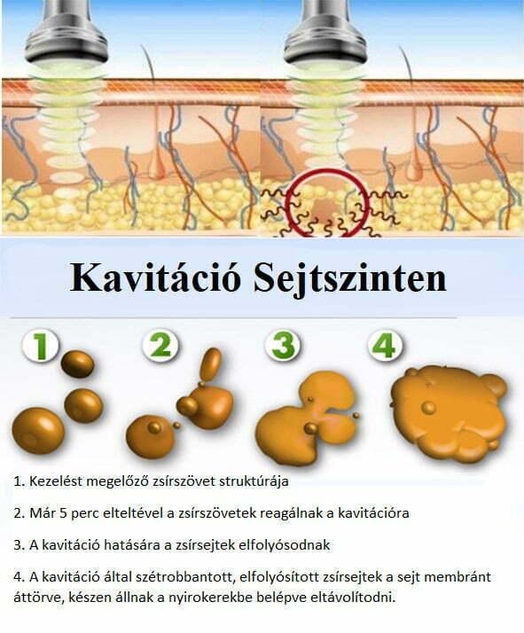 Kavitáció sejtszinten